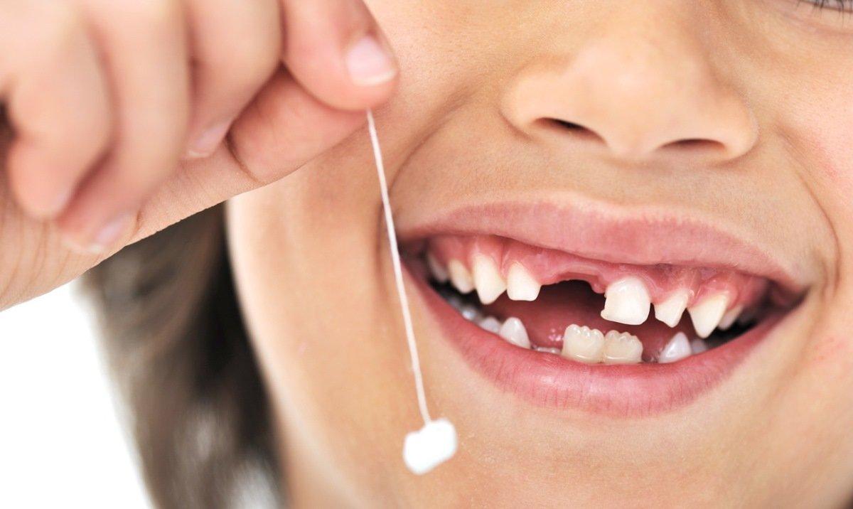 Зубы на полку: сколько стоит красивая улыбка в Северодонецке, фото-6