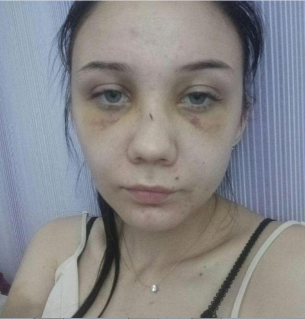Искра.Буря.Безумие. На Луганщине военный поджег квартиру бывшей жены, фото-3