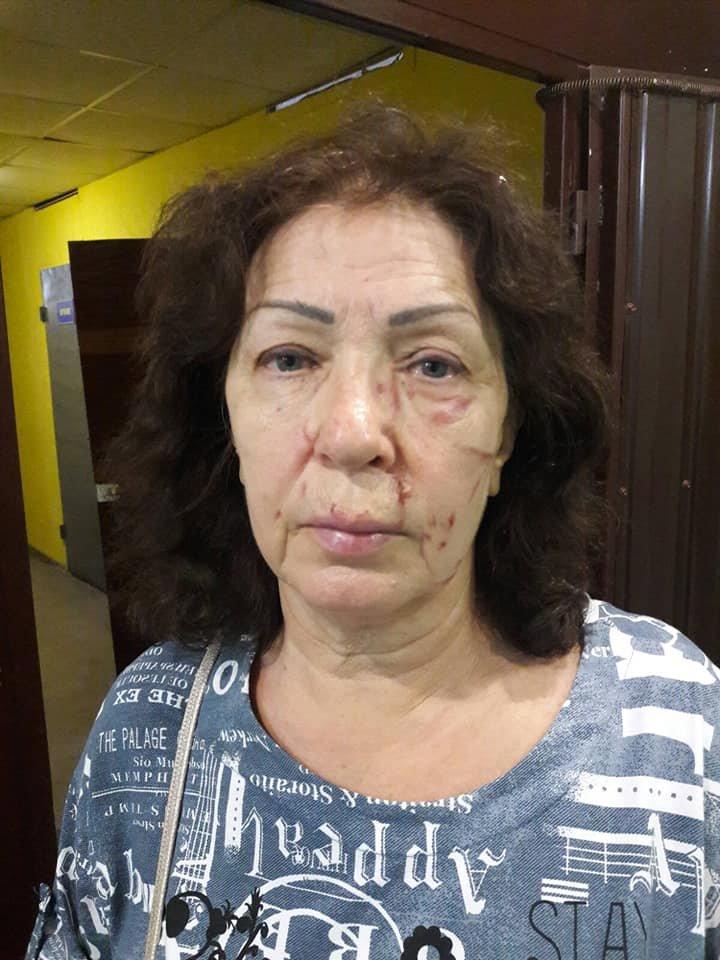 Под Северодонецком в результате конфликта женщина подожгла сарай и избила трех соседок , фото-2