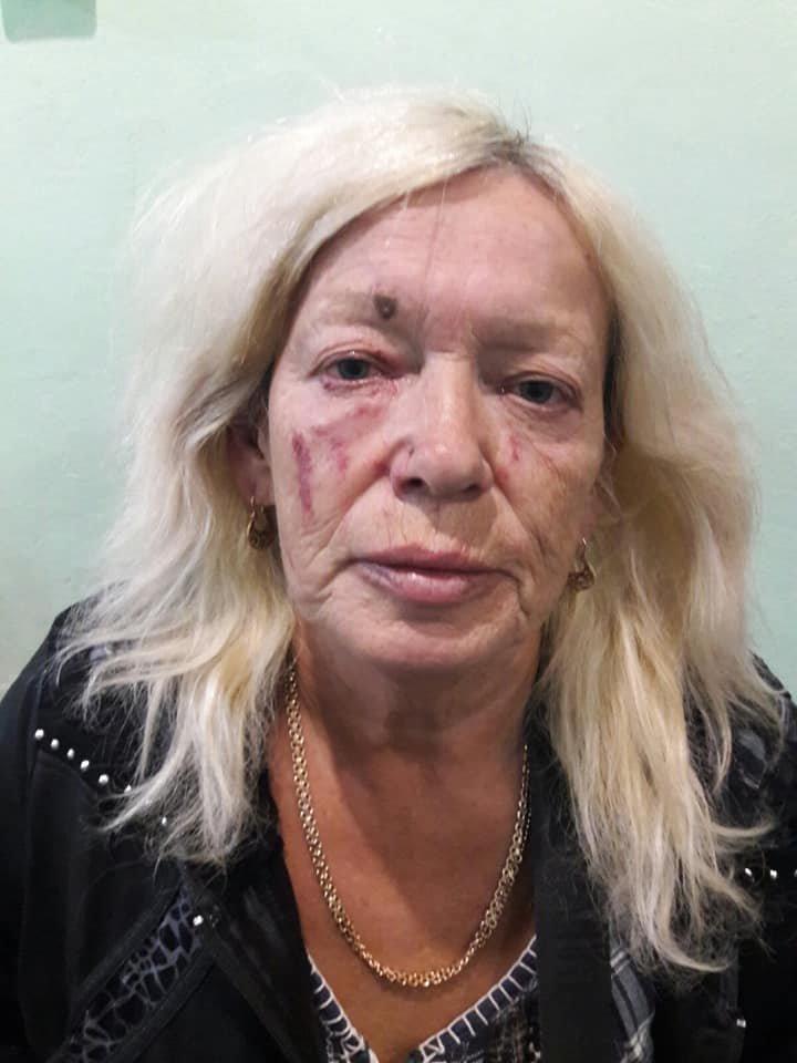 Под Северодонецком в результате конфликта женщина подожгла сарай и избила трех соседок , фото-3
