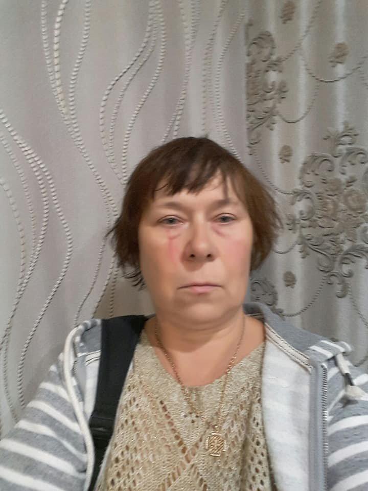 Под Северодонецком в результате конфликта женщина подожгла сарай и избила трех соседок , фото-4